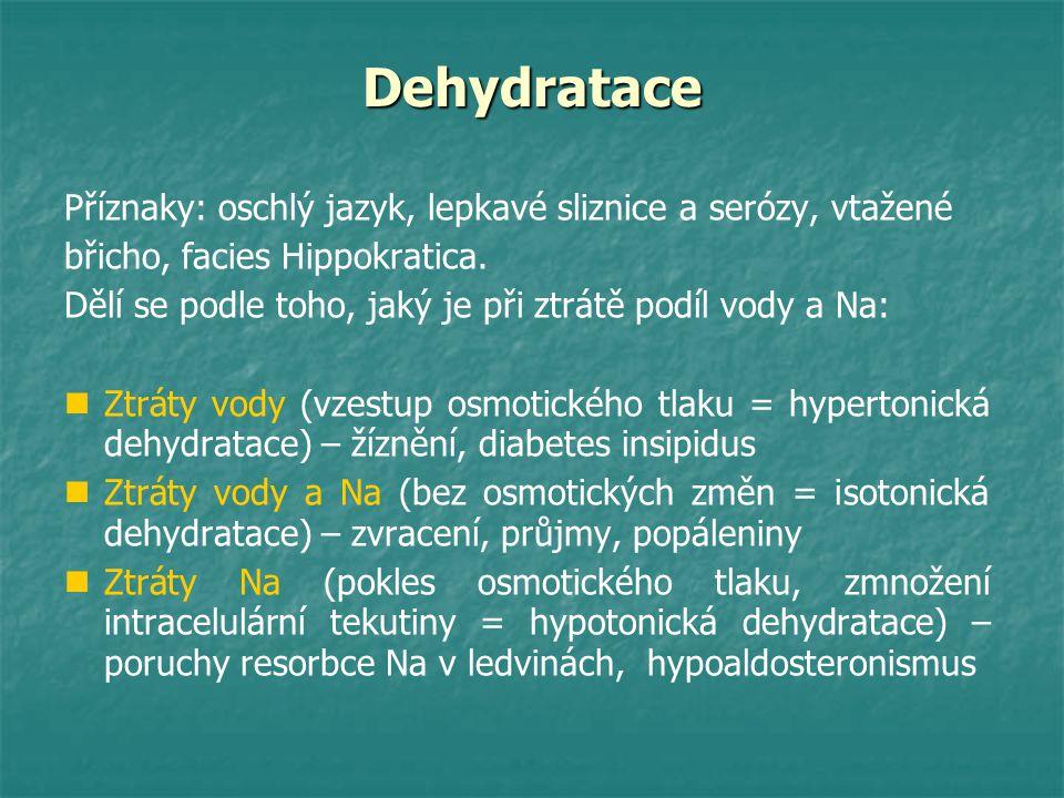 Dehydratace Příznaky: oschlý jazyk, lepkavé sliznice a serózy, vtažené břicho, facies Hippokratica. Dělí se podle toho, jaký je při ztrátě podíl vody