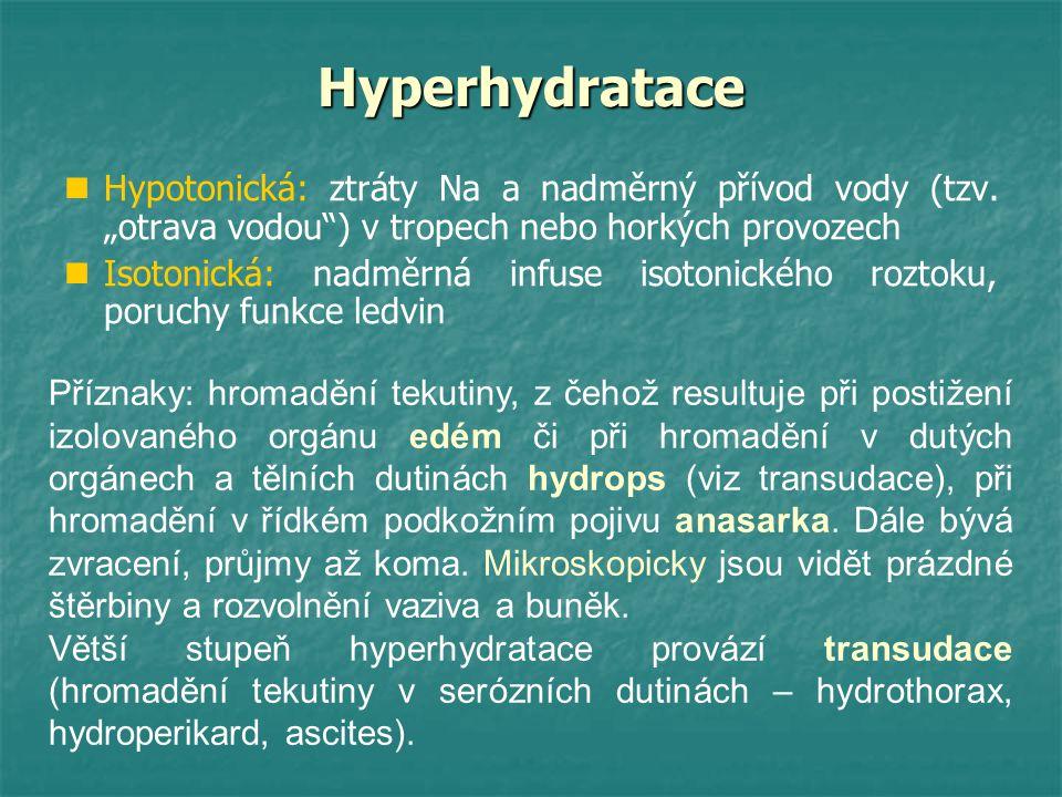 """Hyperhydratace Hypotonická: ztráty Na a nadměrný přívod vody (tzv. """"otrava vodou"""") v tropech nebo horkých provozech Isotonická: nadměrná infuse isoton"""