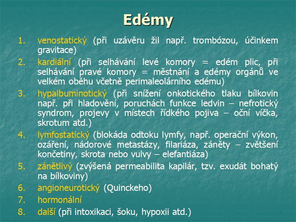 Edémy 1. 1.venostatický (při uzávěru žil např. trombózou, účinkem gravitace) 2. 2.kardiální (při selhávání levé komory = edém plic, při selhávání prav