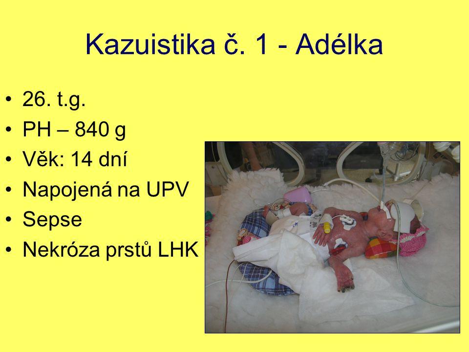 Kazuistika č. 1 - Adélka 26. t.g. PH – 840 g Věk: 14 dní Napojená na UPV Sepse Nekróza prstů LHK