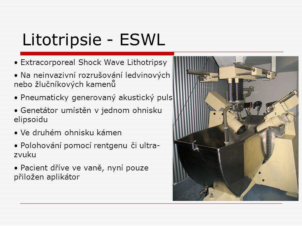 Litotripsie - ESWL Extracorporeal Shock Wave Lithotripsy Na neinvazivní rozrušování ledvinových nebo žlučníkových kamenů Pneumaticky generovaný akustický puls Genetátor umístěn v jednom ohnisku elipsoidu Ve druhém ohnisku kámen Polohování pomocí rentgenu či ultra- zvuku Pacient dříve ve vaně, nyní pouze přiložen aplikátor