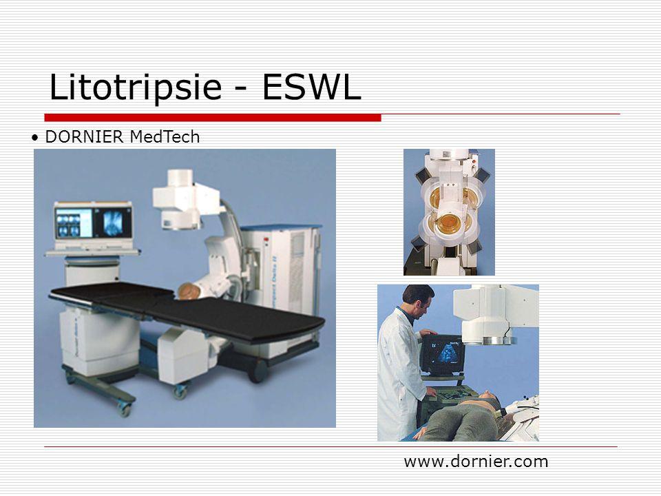 Litotripsie - ESWL DORNIER MedTech www.dornier.com
