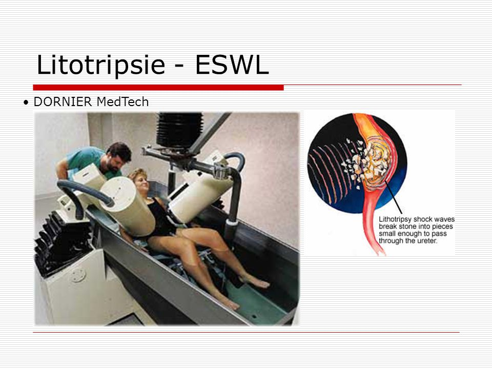 Litotripsie - ESWL DORNIER MedTech