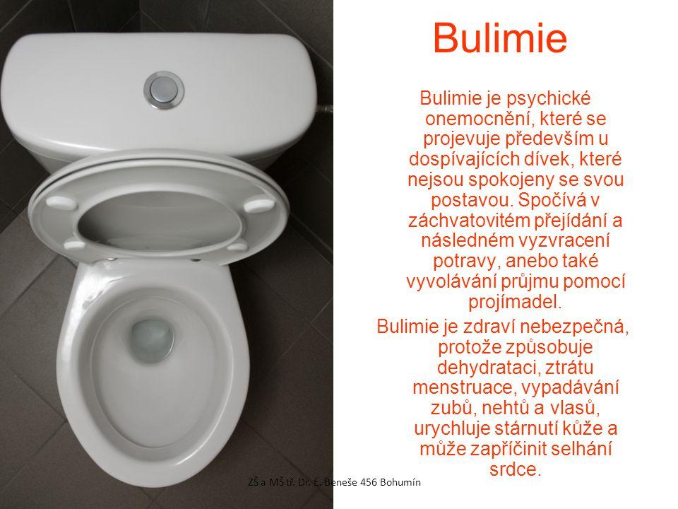 Bulimie Bulimie je psychické onemocnění, které se projevuje především u dospívajících dívek, které nejsou spokojeny se svou postavou. Spočívá v záchva