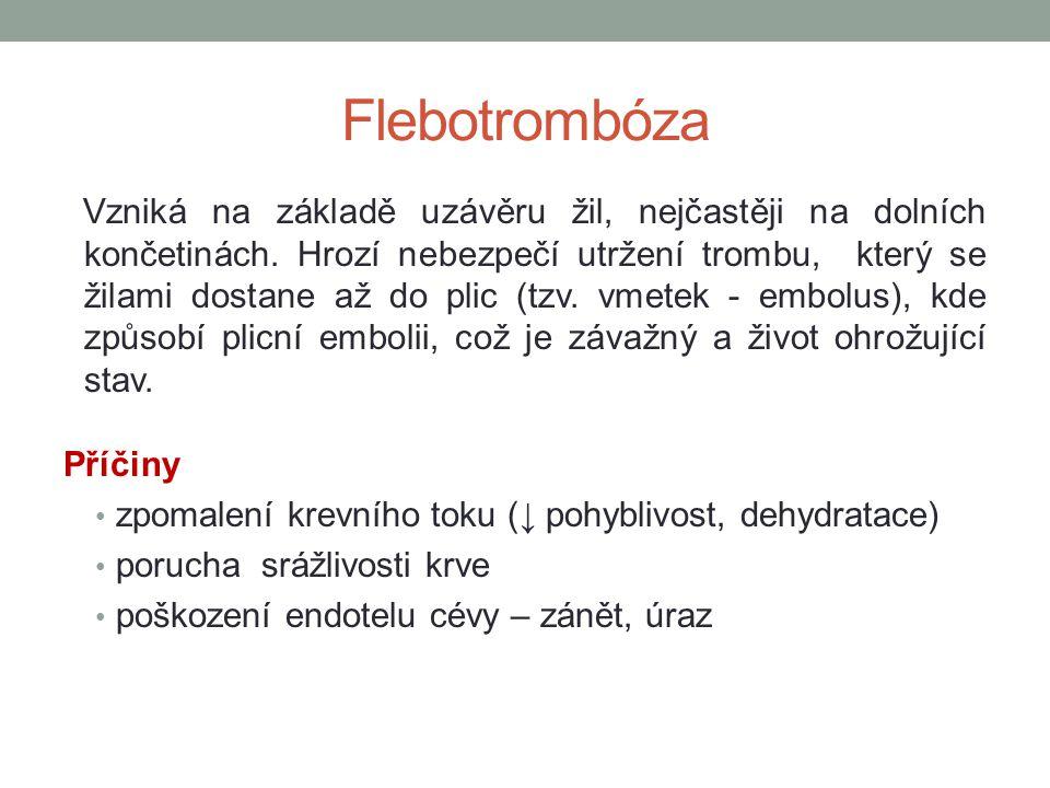 Flebotrombóza Vzniká na základě uzávěru žil, nejčastěji na dolních končetinách. Hrozí nebezpečí utržení trombu, který se žilami dostane až do plic (tz