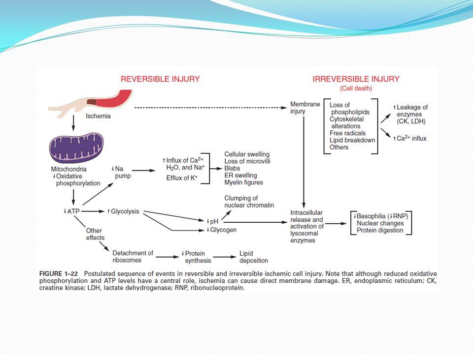 Příklady buněčného poškození vedoucí k nekróze 2.