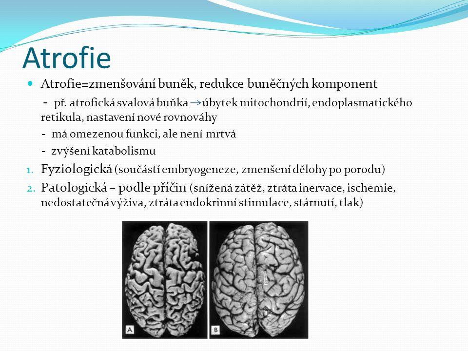 Atrofie Atrofie=zmenšování buněk, redukce buněčných komponent - př. atrofická svalová buňka úbytek mitochondrií, endoplasmatického retikula, nastavení