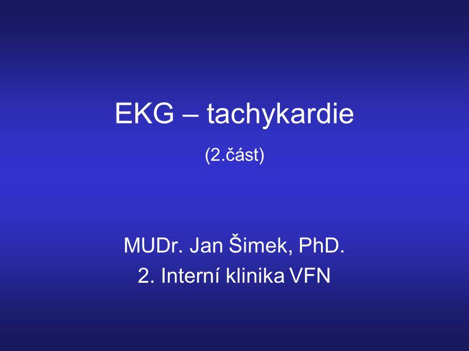 EKG – tachykardie (2.část) MUDr. Jan Šimek, PhD. 2. Interní klinika VFN