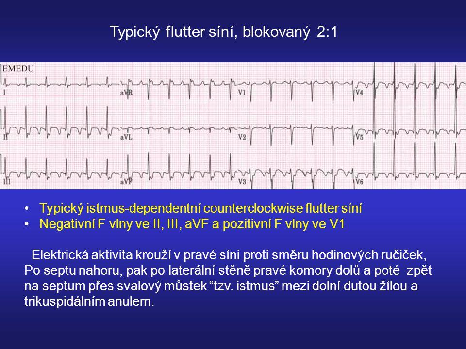 Typický flutter síní s vysokým stupněm AV blokády Typický flutter síní: negativní F ve II, III, aVF a positivní ve V1