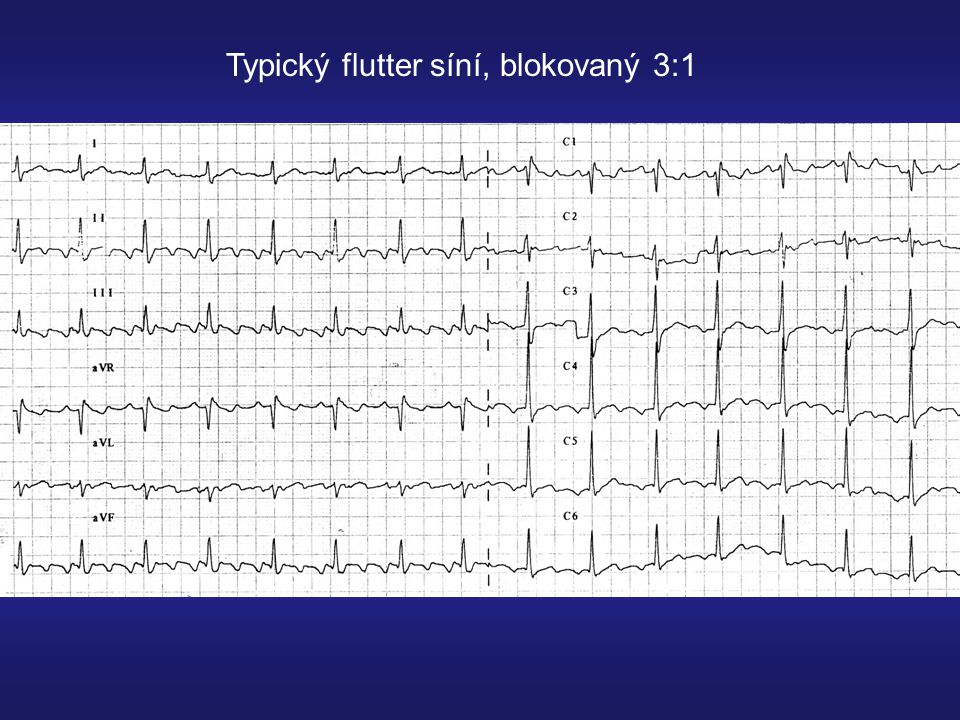 Typický flutter síní, blokovaný 3:1