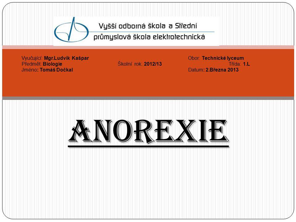 Zdroje http://nemoci.vitalion.cz/anorexie/ http://www.ahaonline.cz/clanek/musite- vedet/81659/sokujici-foto-nejhubenejsi-zena-sveta- anorexie-z-ni-udelala-chodici-kostru.html http://www.ahaonline.cz/clanek/musite- vedet/81659/sokujici-foto-nejhubenejsi-zena-sveta- anorexie-z-ni-udelala-chodici-kostru.html http://www.quiricon.estranky.cz/fotoalbum/mentalni- anorexie/mentalni-anorexie/anorexie-07.html http://www.quiricon.estranky.cz/fotoalbum/mentalni- anorexie/mentalni-anorexie/anorexie-07.html