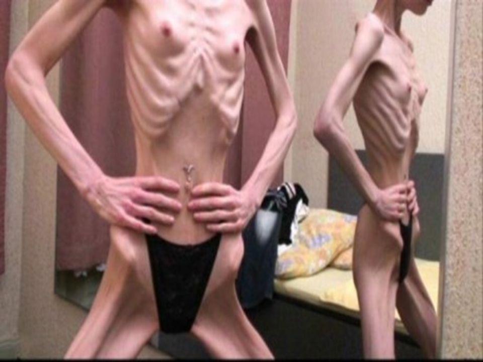 Příčiny Vzniku Přesné a konkrétní příčiny vzniku anorexie nejsou známy.