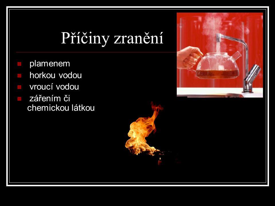 Příčiny zranění plamenem horkou vodou vroucí vodou zářením či chemickou látkou