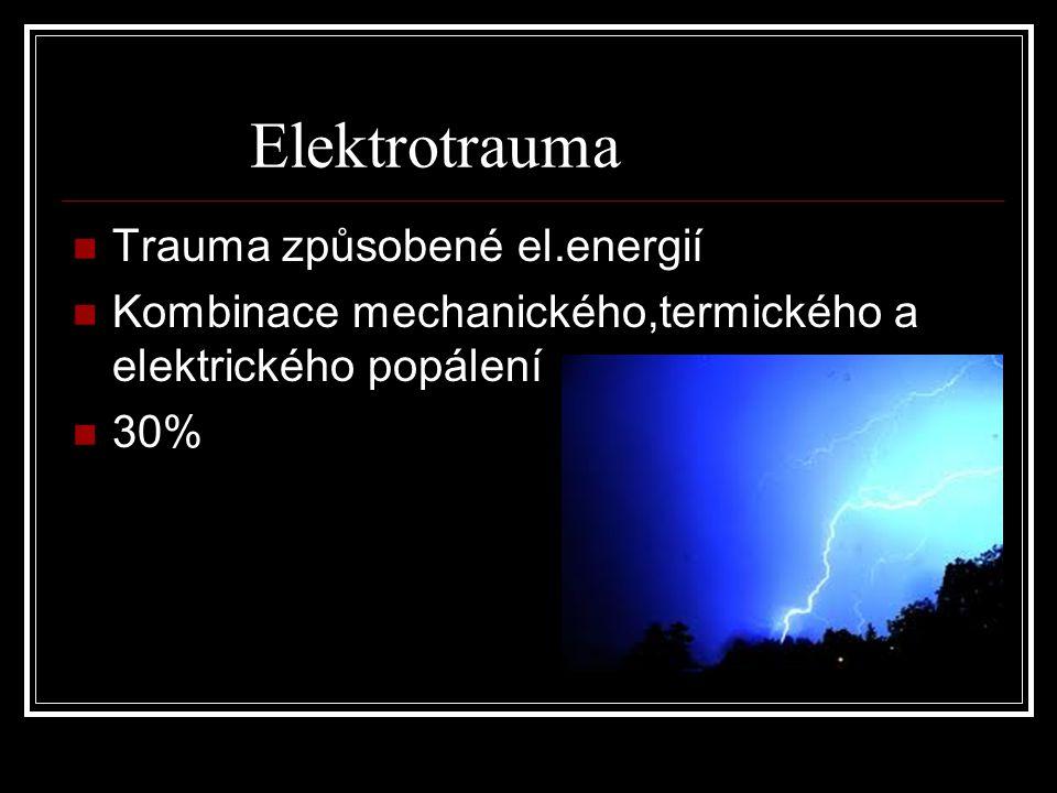 Elektrotrauma Trauma způsobené el.energií Kombinace mechanického,termického a elektrického popálení 30%
