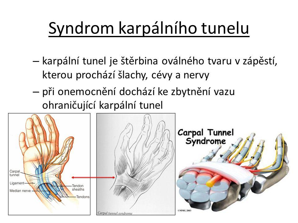 Syndrom karpálního tunelu – karpální tunel je štěrbina oválného tvaru v zápěstí, kterou prochází šlachy, cévy a nervy – při onemocnění dochází ke zbyt