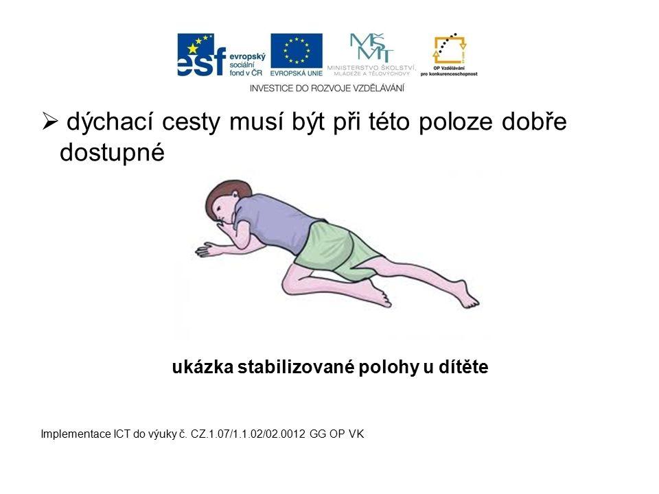  dýchací cesty musí být při této poloze dobře dostupné ukázka stabilizované polohy u dítěte Implementace ICT do výuky č. CZ.1.07/1.1.02/02.0012 GG OP
