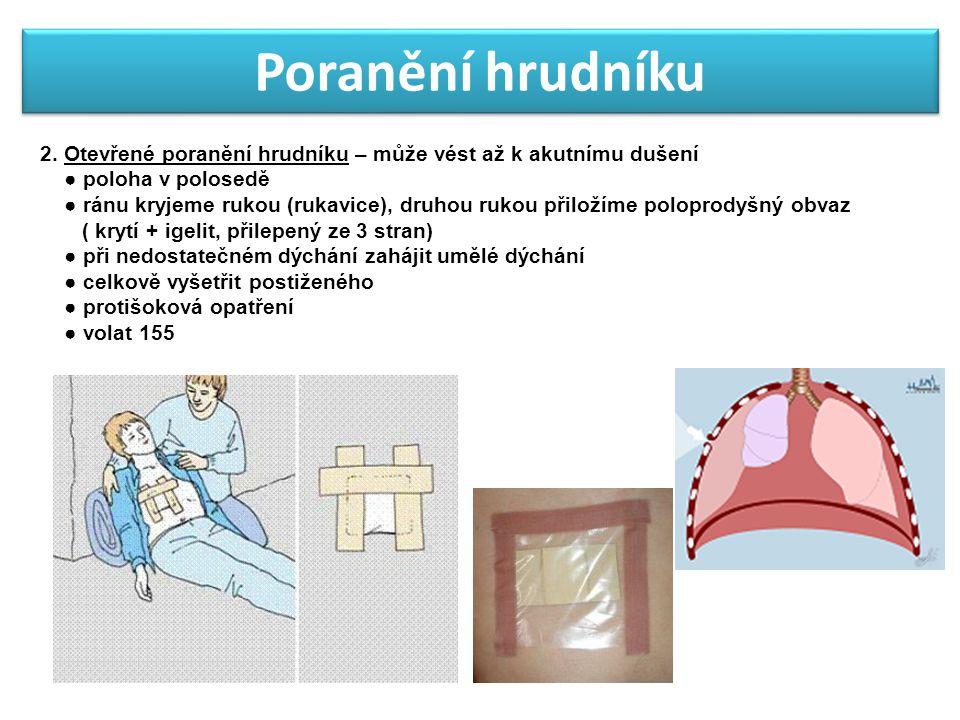 Poranění hrudníku 2. Otevřené poranění hrudníku – může vést až k akutnímu dušení ● poloha v polosedě ● ránu kryjeme rukou (rukavice), druhou rukou při