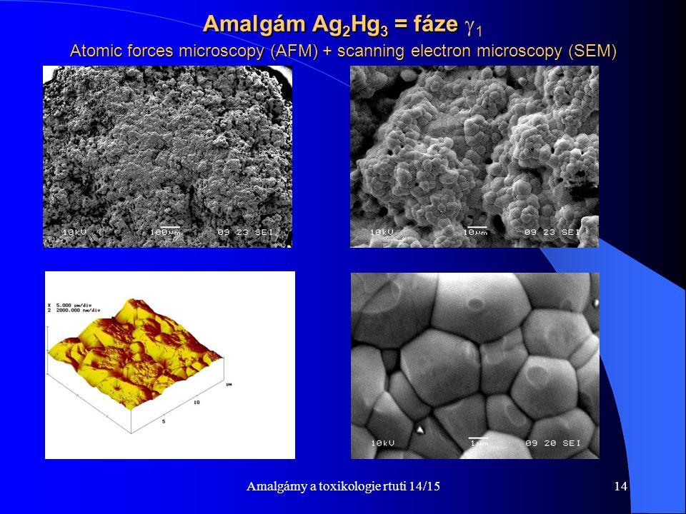 Amalgámy a toxikologie rtuti 14/1514 Amalgám Ag 2 Hg 3 = fáze Atomic forces microscopy (AFM) + scanning electron microscopy (SEM) Amalgám Ag 2 Hg 3 =
