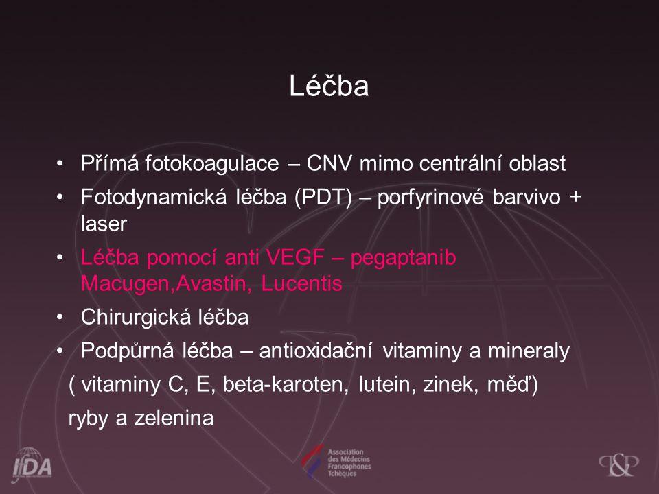 Léčba Přímá fotokoagulace – CNV mimo centrální oblast Fotodynamická léčba (PDT) – porfyrinové barvivo + laser Léčba pomocí anti VEGF – pegaptanib Macu