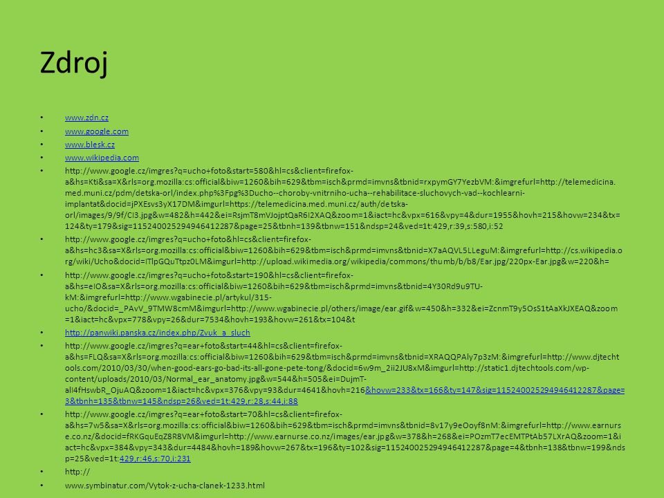 Zdroj www.zdn.cz www.google.com www.blesk.cz www.wikipedia.com http://www.google.cz/imgres?q=ucho+foto&start=580&hl=cs&client=firefox- a&hs=Kti&sa=X&r