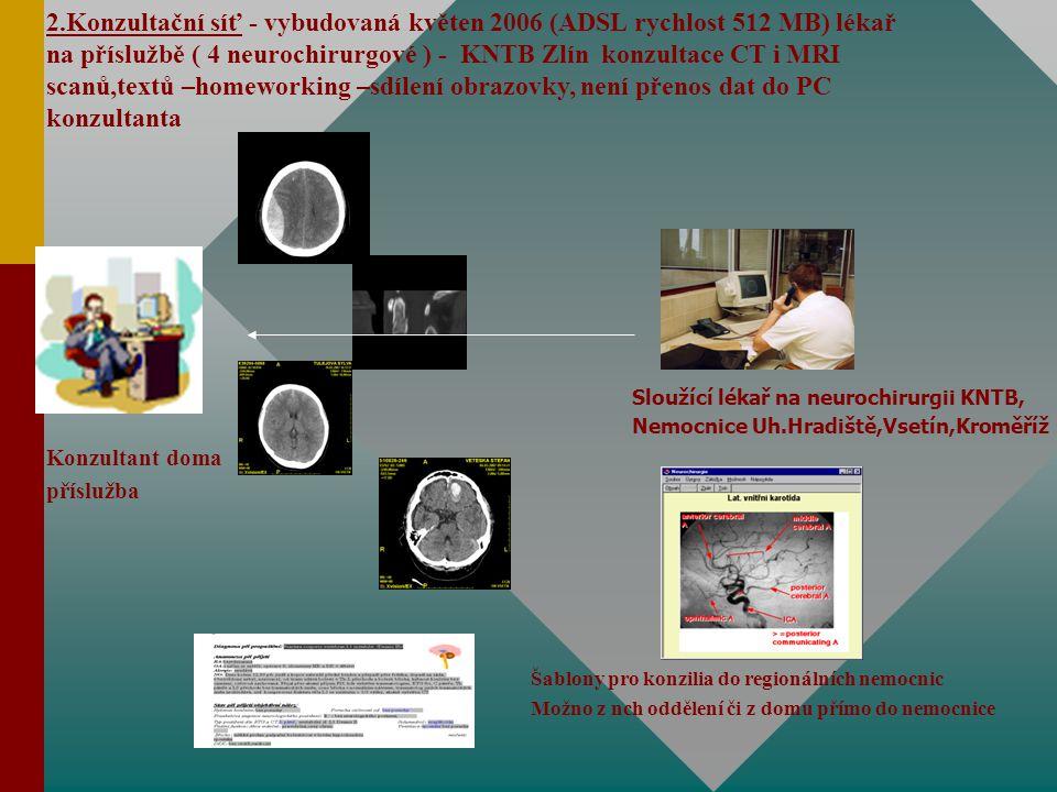 2.Konzultační síť - vybudovaná květen 2006 (ADSL rychlost 512 MB) lékař na příslužbě ( 4 neurochirurgové ) - KNTB Zlín konzultace CT i MRI scanů,textů –homeworking –sdílení obrazovky, není přenos dat do PC konzultanta Konzultant doma příslužba Sloužící lékař na neurochirurgii KNTB, Nemocnice Uh.Hradiště,Vsetín,Kroměříž Šablony pro konzilia do regionálních nemocnic Možno z nch oddělení či z domu přímo do nemocnice
