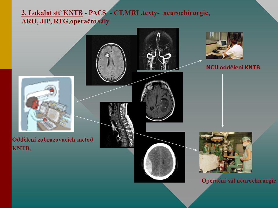3. Lokální síť KNTB - PACS - CT,MRI,texty- neurochirurgie, ARO, JIP, RTG,operační sály Oddělení zobrazovacích metod KNTB, NCH oddělení KNTB Operační s