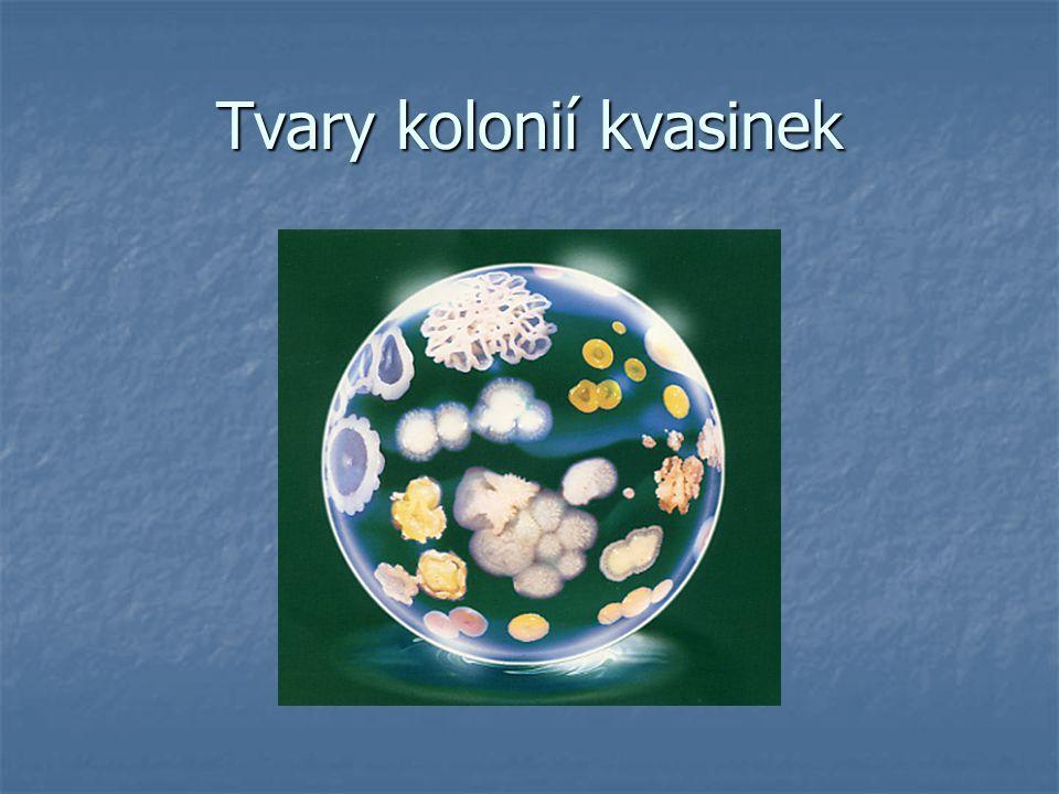 Úkol č.2.: Pozorování bakterií – trvalé preparáty Pomůcky: mikroskop, pomůcky k mikroskopovaní, TP Pomůcky: mikroskop, pomůcky k mikroskopovaní, TP Postup práce: Pod mikroskopem pozorujte různé tvary bakterií a zakreslete do sešitu.