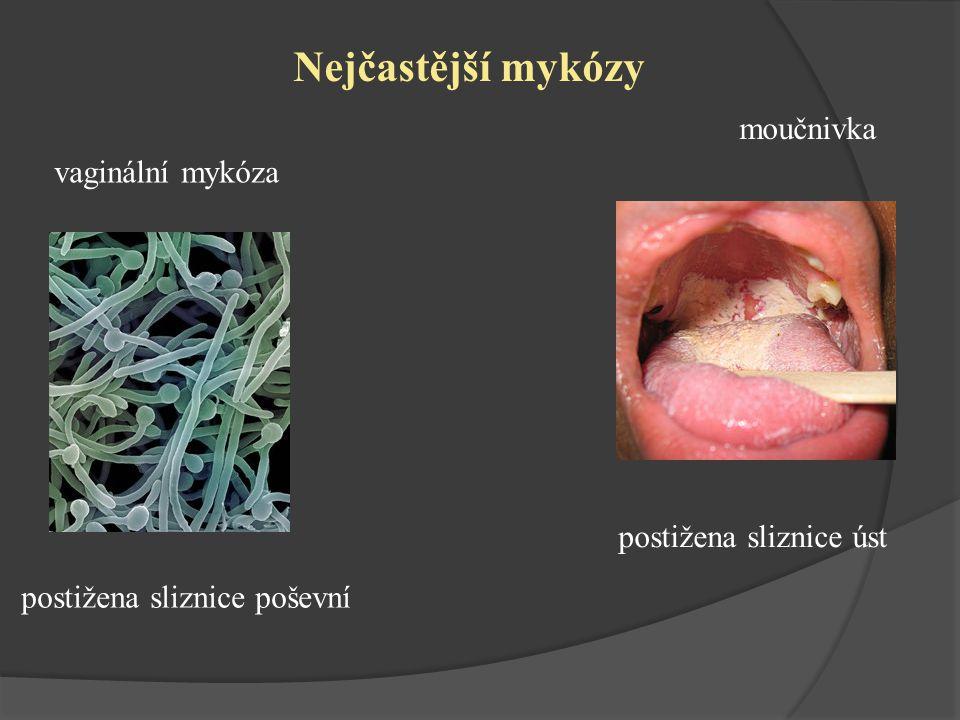 vaginální mykóza postižena sliznice poševní moučnivka postižena sliznice úst Nejčastější mykózy