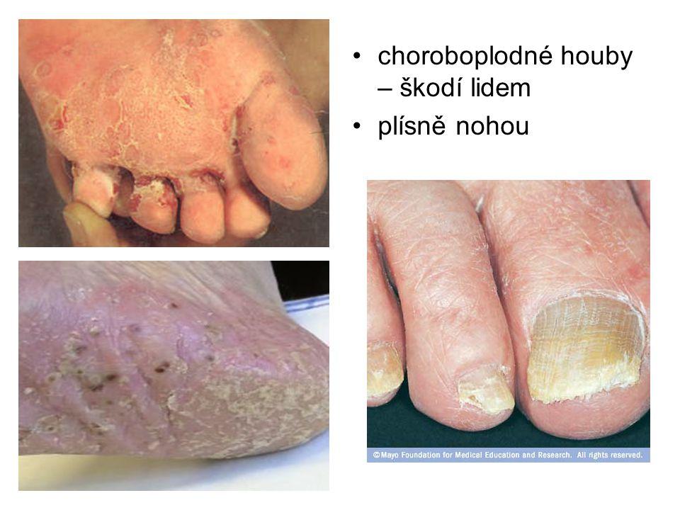 choroboplodné houby – škodí lidem plísně nohou