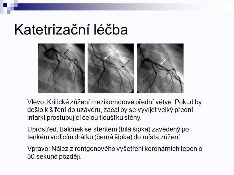 Katetrizační léčba Vlevo: Kritické zúžení mezikomorové přední větve. Pokud by došlo k šíření do uzávěru, začal by se vyvíjet velký přední infarkt pros
