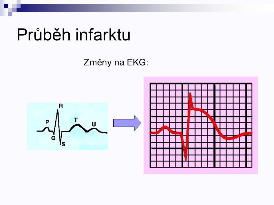 Průběh infarktu Změny na EKG: