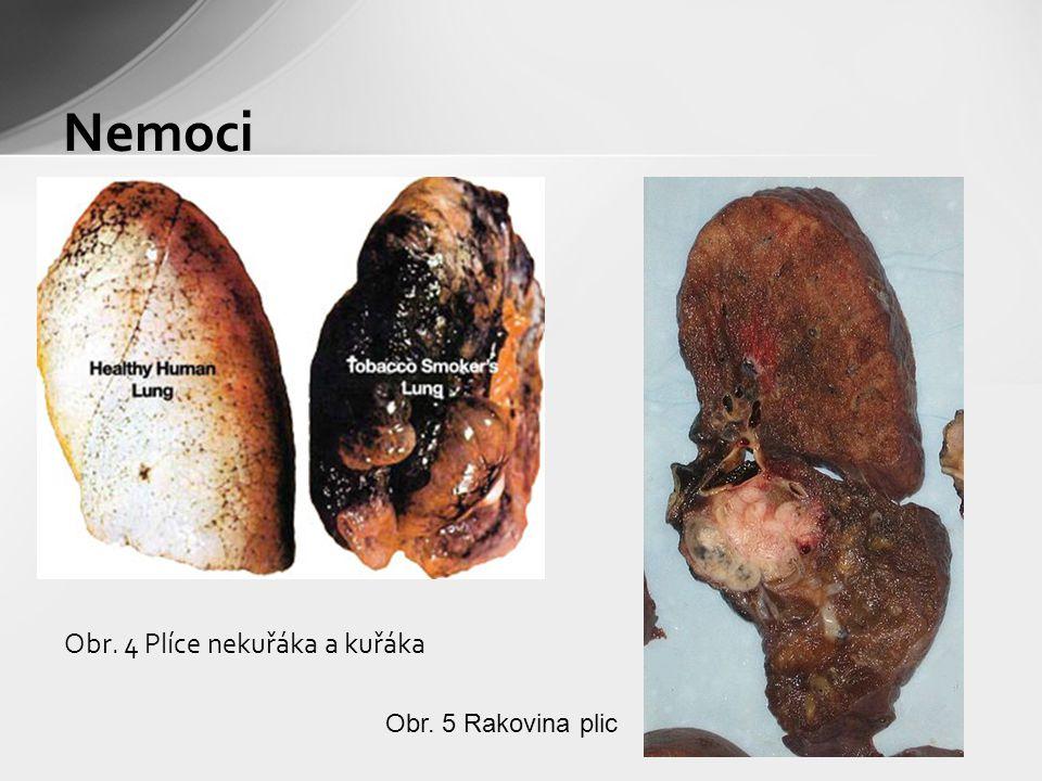 Obr. 4 Plíce nekuřáka a kuřáka Nemoci Obr. 5 Rakovina plic
