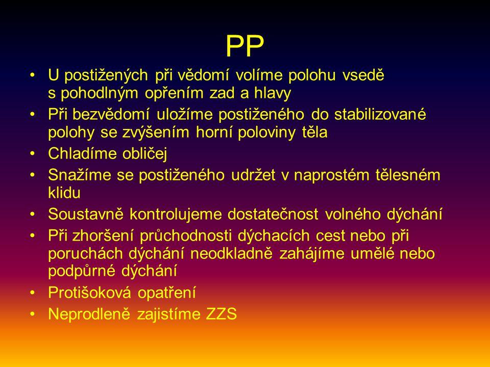 PP U postižených při vědomí volíme polohu vsedě s pohodlným opřením zad a hlavy Při bezvědomí uložíme postiženého do stabilizované polohy se zvýšením