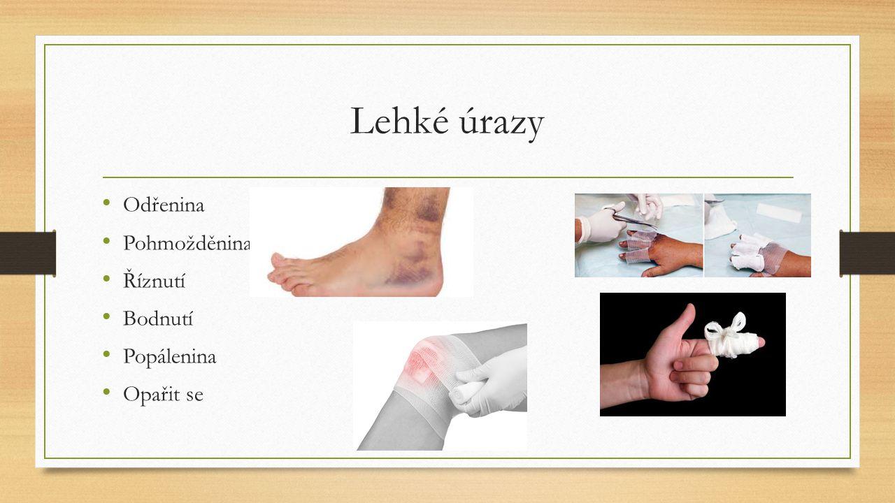 úrazy Vykloubené rameno Vymknutý kotník Natažený (namožený) sval Pohmožděný prst Odřená kůže Popálené prsty