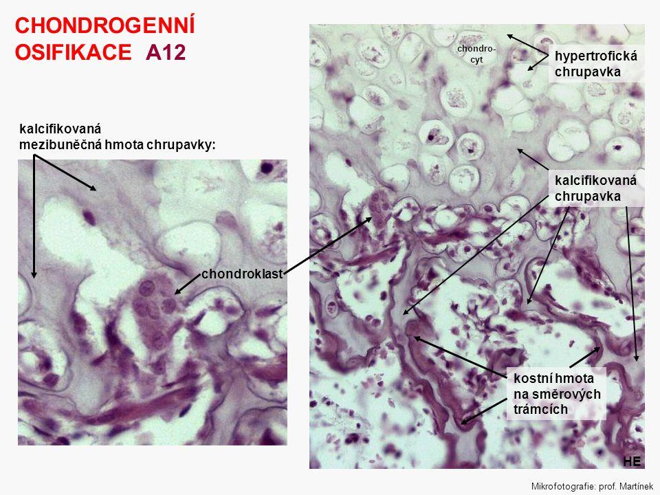 12 CHONDROGENNÍ OSIFIKACE A12 chondroklast kalcifikovaná mezibuněčná hmota chrupavky: Mikrofotografie: prof. Martínek kalcifikovaná chrupavka hypertro