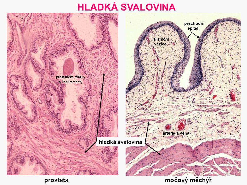 22 prostatické žlázky s konkrementy močový měchýř HLADKÁ SVALOVINA hladká svalovina přechodní epitel arterie a véna prostata slizniční vazivo