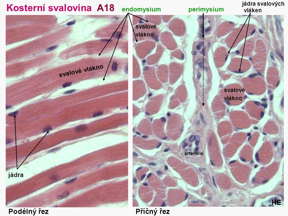 27 Kosterní svalovina A18 perimysium arteriola Příčný řezPodélný řez svalové vlákno endomysium svalové vlákno svalové vlákno HE jádra svalových vláken
