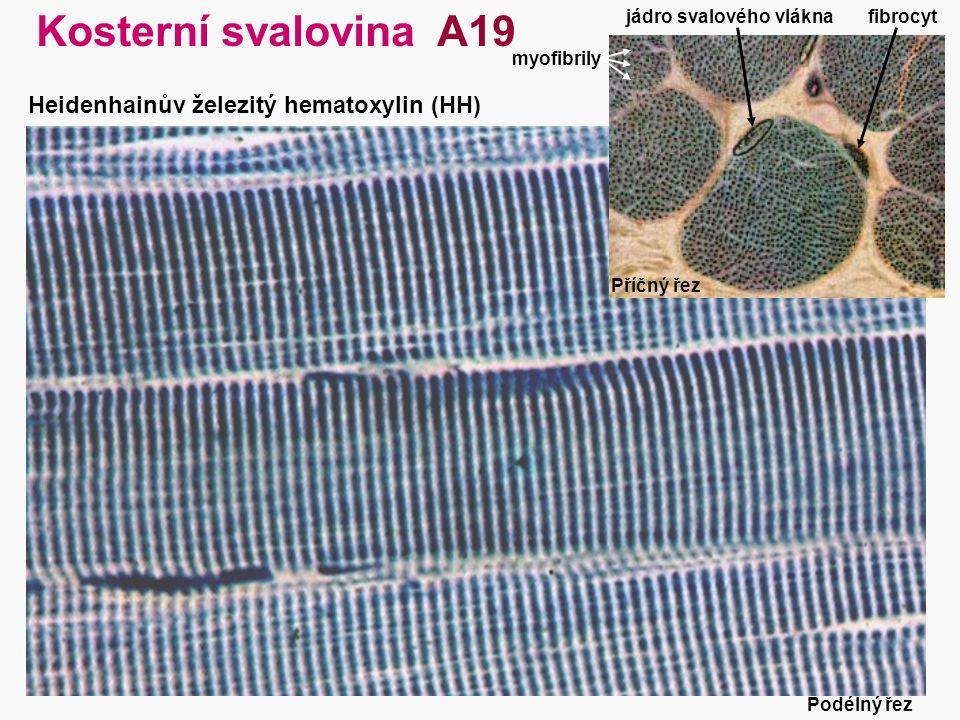 29 Kosterní svalovina A19 Heidenhainův železitý hematoxylin (HH) jádro svalového vláknafibrocyt myofibrily Příčný řez Podélný řez