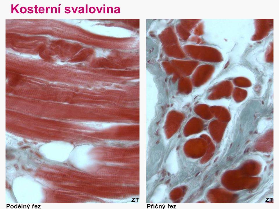 30 Kosterní svalovina Podélný řezPříčný řez ZT