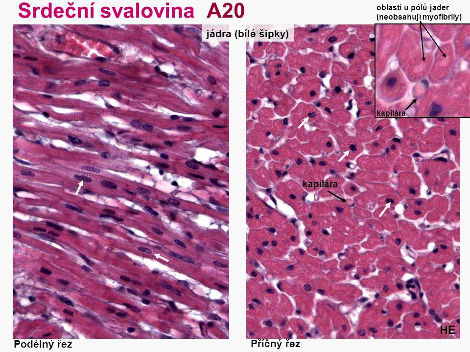 35 Srdeční svalovina A20 HE Podélný řez Příčný řez jádra (bílé šipky) kapilára oblasti u pólů jader (neobsahují myofibrily) kapilára