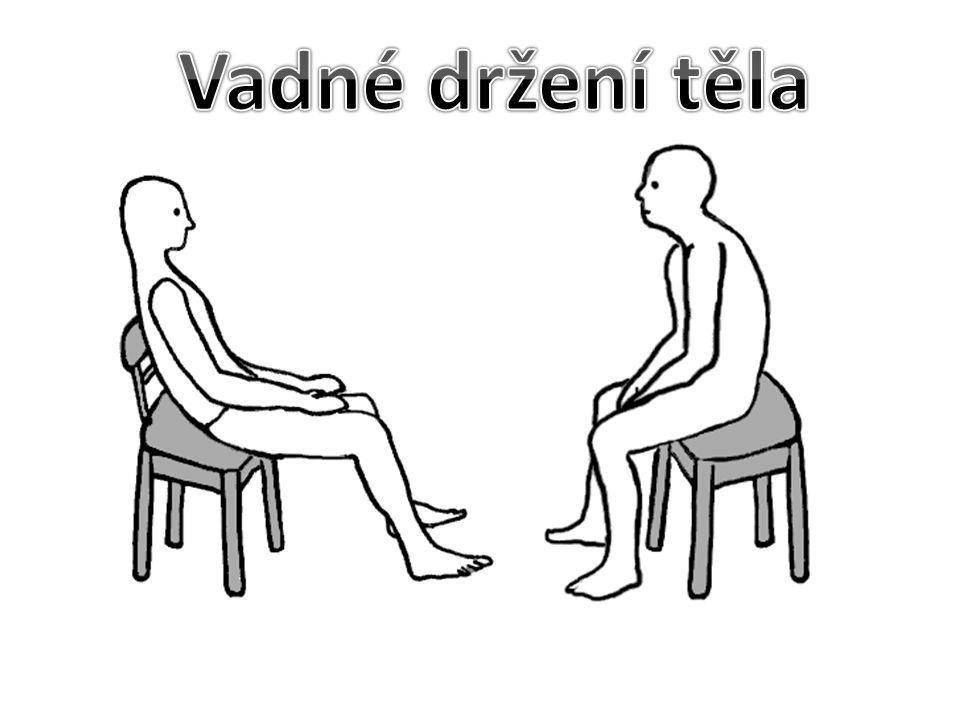 Nejčastější poruchy a vadné držení těla 1.Správná pozice páteře – dvojesovité zakřivení páteře.