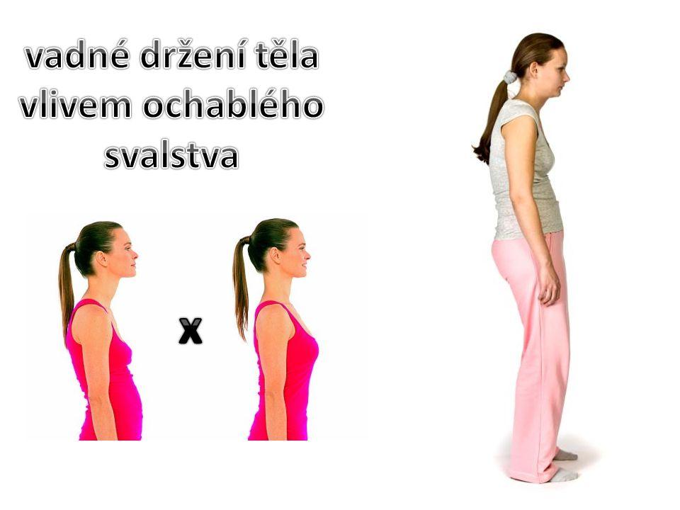 hlava není ve středu nad tělem jedno rameno je výš než druhé jedna lopatka je výš a více vyčnívající zřetelně vybočená páteřjeden bok více vyčnívá nerovnoměrné mezery mezi pažemi a trupem