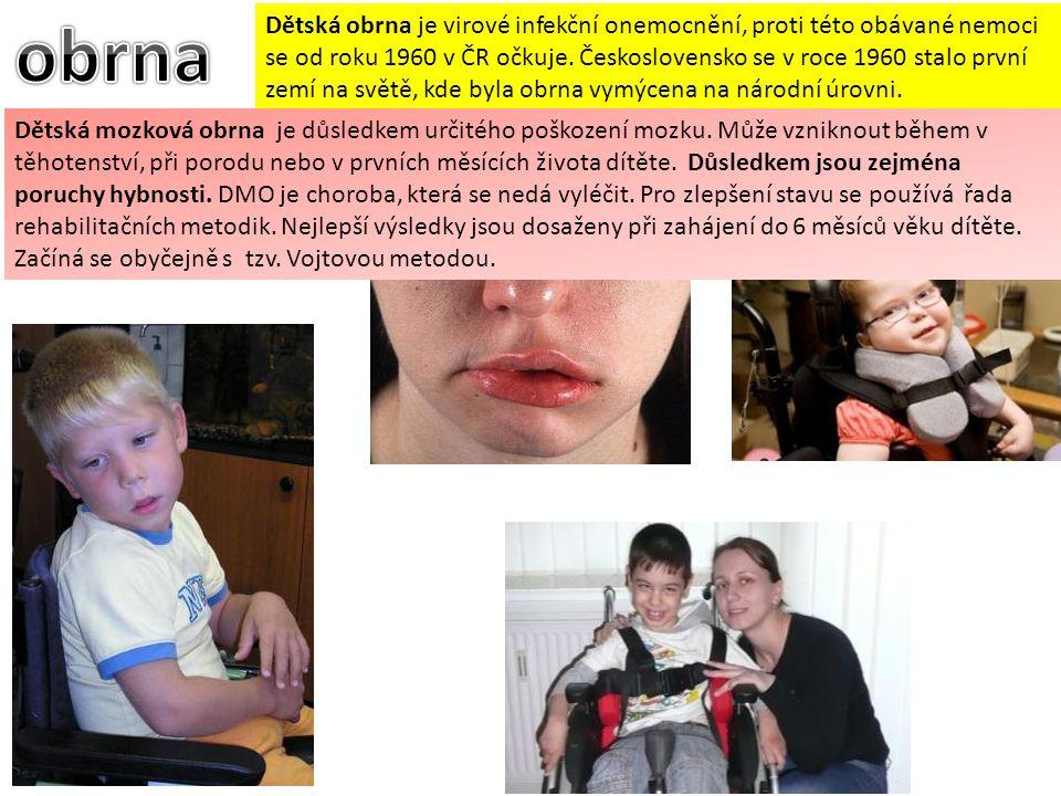 Dětská obrna je virové infekční onemocnění, proti této obávané nemoci se od roku 1960 v ČR očkuje. Československo se v roce 1960 stalo první zemí na s