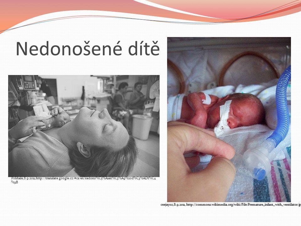 Nedonošené dítě Polihale,8.9.2011,http://translate.google.cz/#cs/en/nedono%C5%A1en%C3%A9%20d%C3%ADt%C4 %9B ceejayoz,8.9.2011, http://commons.wikimedia
