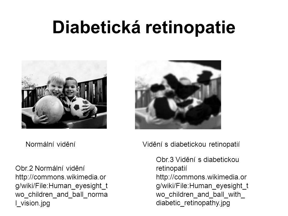 Diabetická retinopatie Obr.2 Normální vidění http://commons.wikimedia.or g/wiki/File:Human_eyesight_t wo_children_and_ball_norma l_vision.jpg Normální