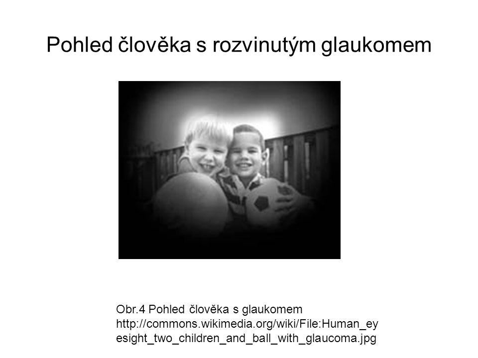 Pohled člověka s rozvinutým glaukomem Obr.4 Pohled člověka s glaukomem http://commons.wikimedia.org/wiki/File:Human_ey esight_two_children_and_ball_wi