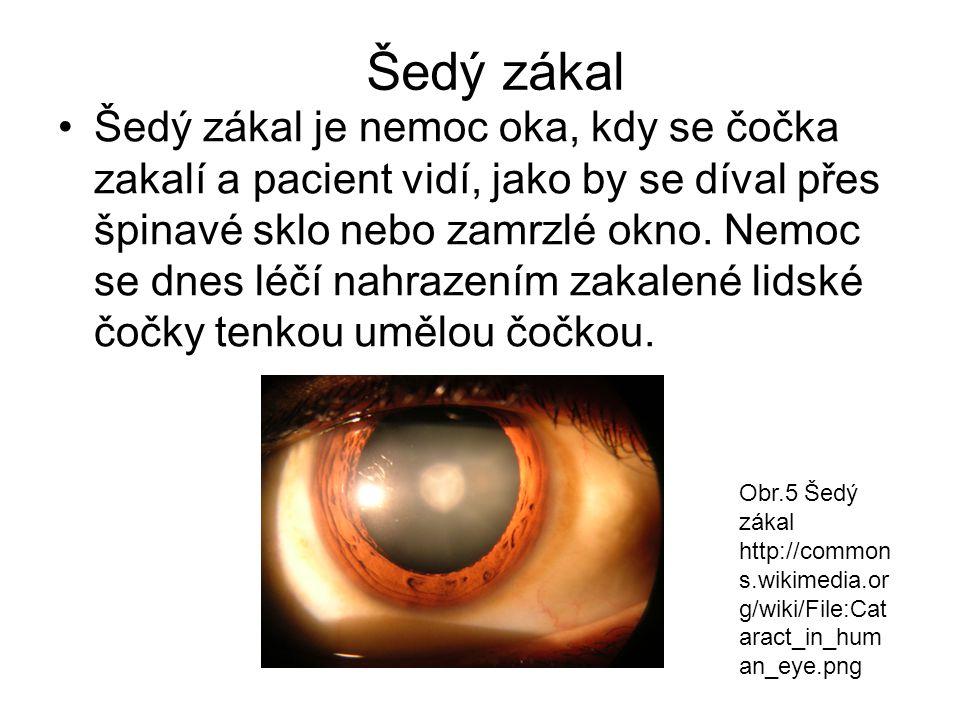 Šedý zákal Šedý zákal je nemoc oka, kdy se čočka zakalí a pacient vidí, jako by se díval přes špinavé sklo nebo zamrzlé okno. Nemoc se dnes léčí nahra