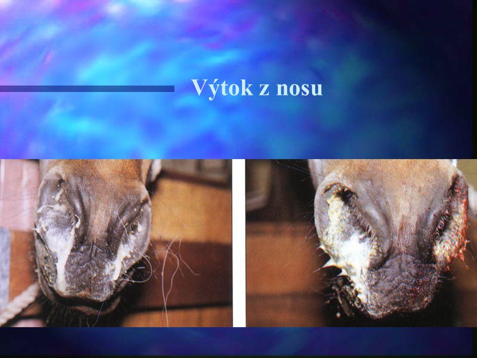 Výtok z nosu