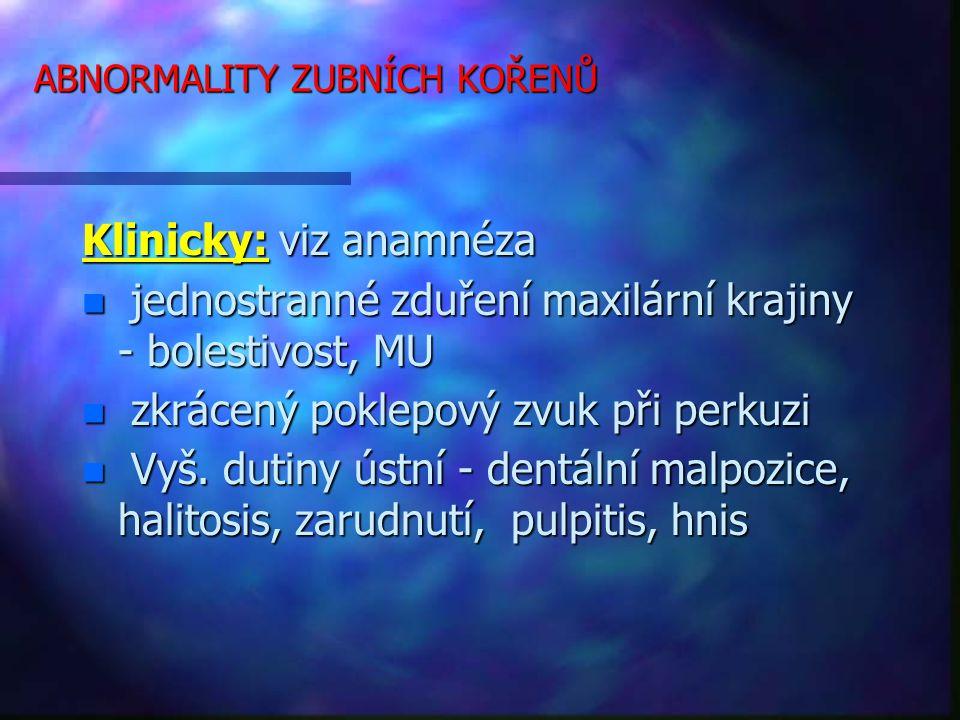 ABNORMALITY ZUBNÍCH KOŘENŮ Klinicky: viz anamnéza n jednostranné zduření maxilární krajiny - bolestivost, MU n zkrácený poklepový zvuk při perkuzi n Vyš.