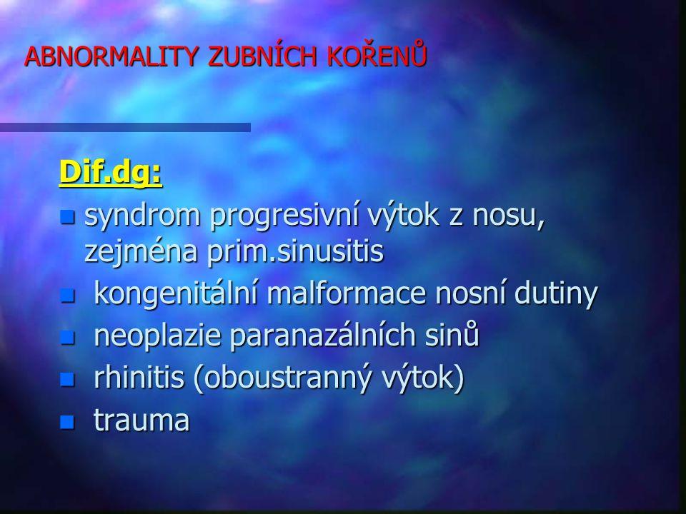 ABNORMALITY ZUBNÍCH KOŘENŮ Dif.dg: n syndrom progresivní výtok z nosu, zejména prim.sinusitis n kongenitální malformace nosní dutiny n neoplazie paranazálních sinů n rhinitis (oboustranný výtok) n trauma